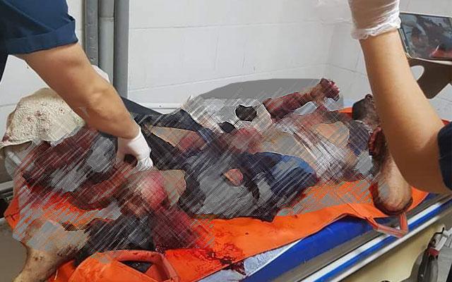 Reyhanlı'da patlama 2 yaralı