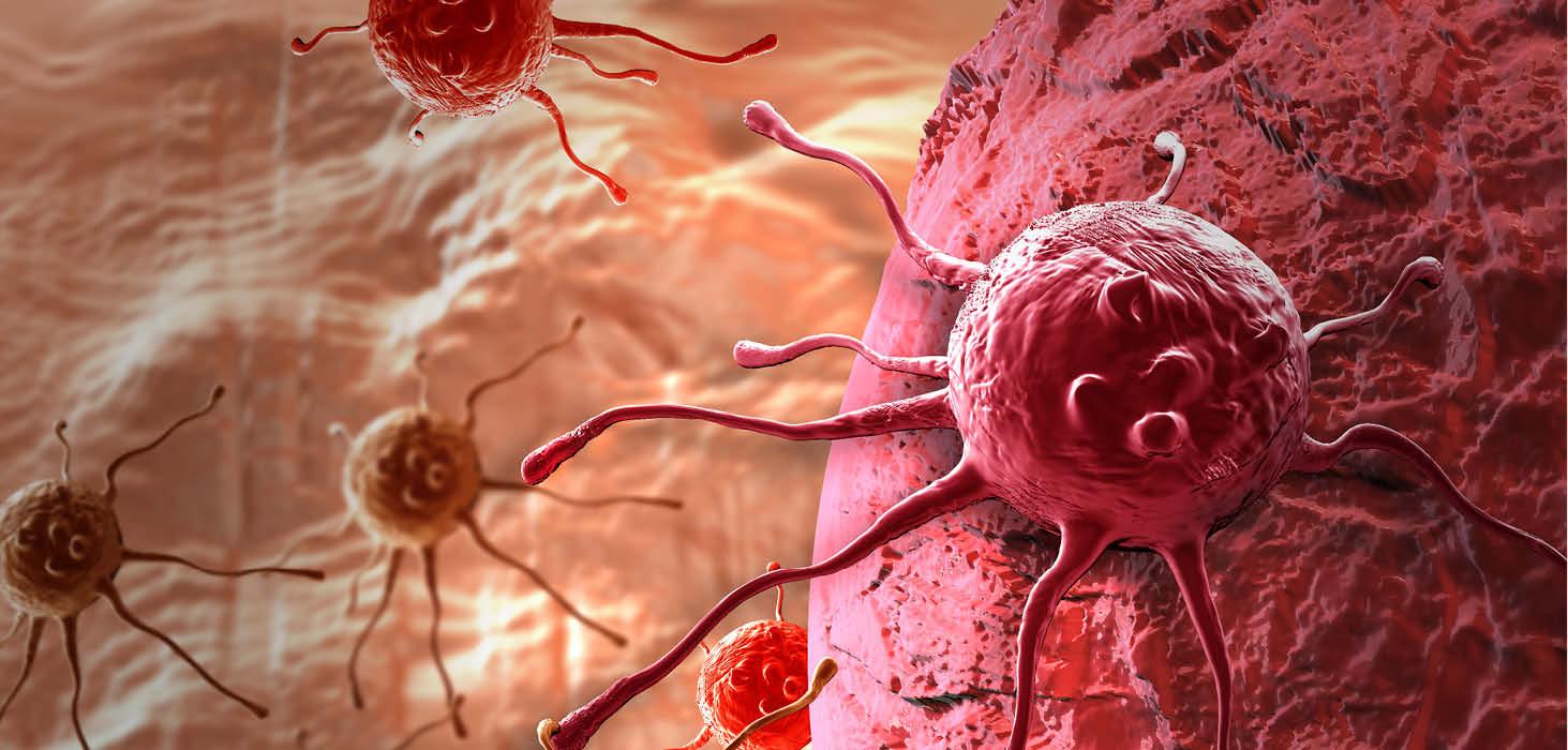 Genetik eğilim kanser oluşumunda önemli bir risk faktörü mü?