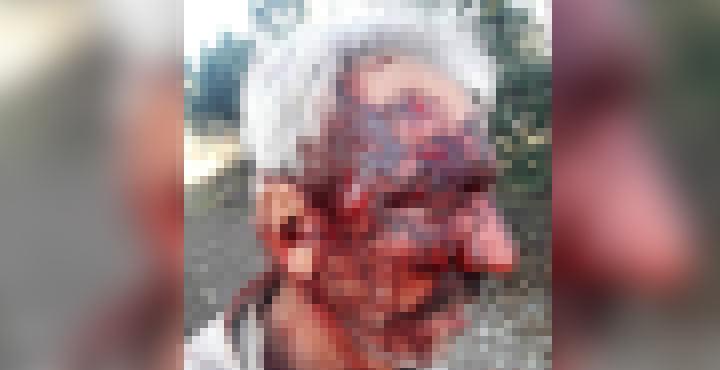 Arazi meselesi yüzünden Engelli adamı dövüp çukura attı