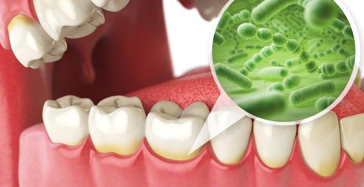 Diş Etindeki Bakteri Oluşumuna Dikkat !