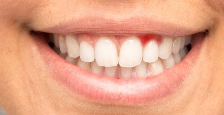 Diş Etinde Oluşacak Hastalık Belirtilerine Dikkat !